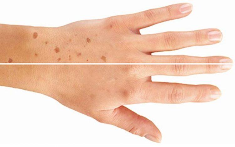 Bệnh về da thường gặp ở người cao tuổi